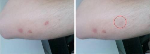 蚊癢舒緩器 免擦藥 十秒內消除蚊蟲叮咬紅腫與發癢感